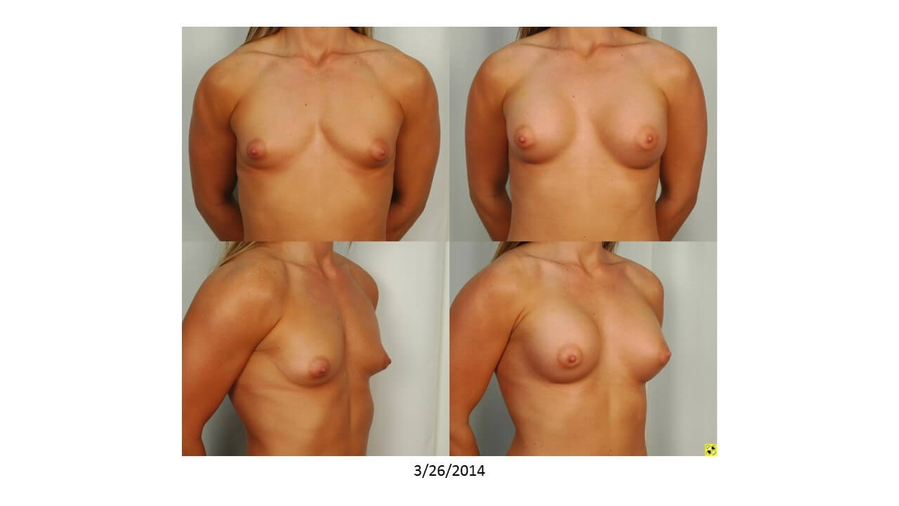 Breast Enlargment - Front Before
