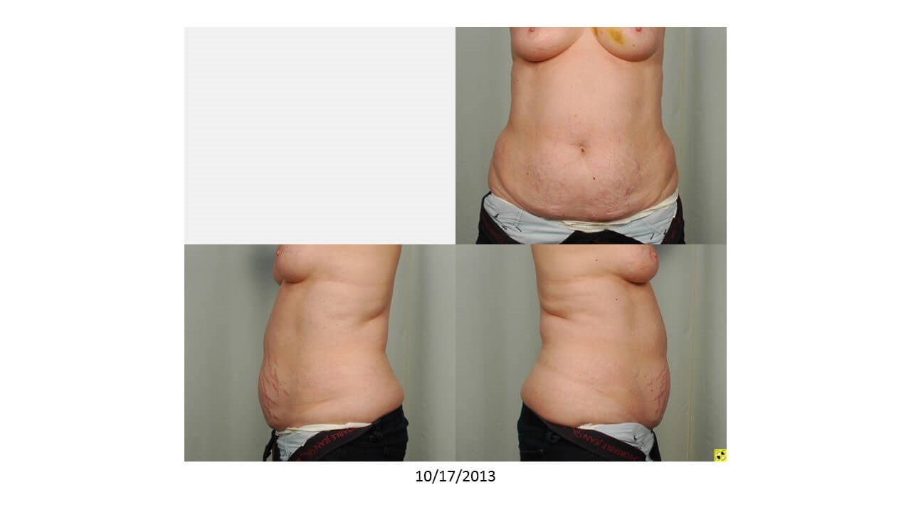Tummy Tuck: Donor Site Before