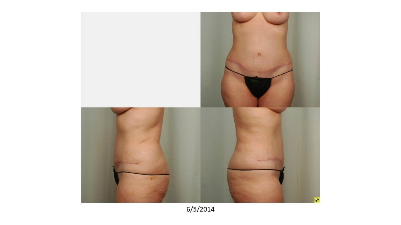 Tummy Tuck: Donor Site After