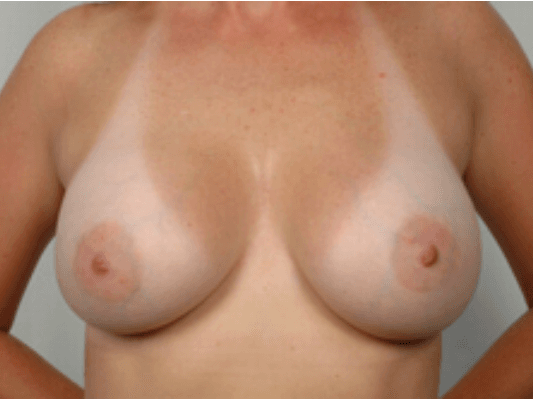 Breast Augmentation - Front After