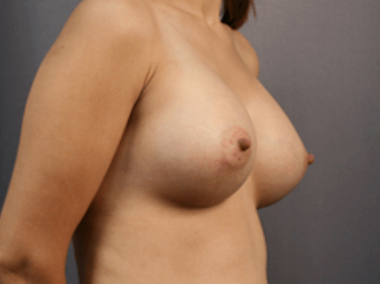 Breast Enlargement - Side After 1 month