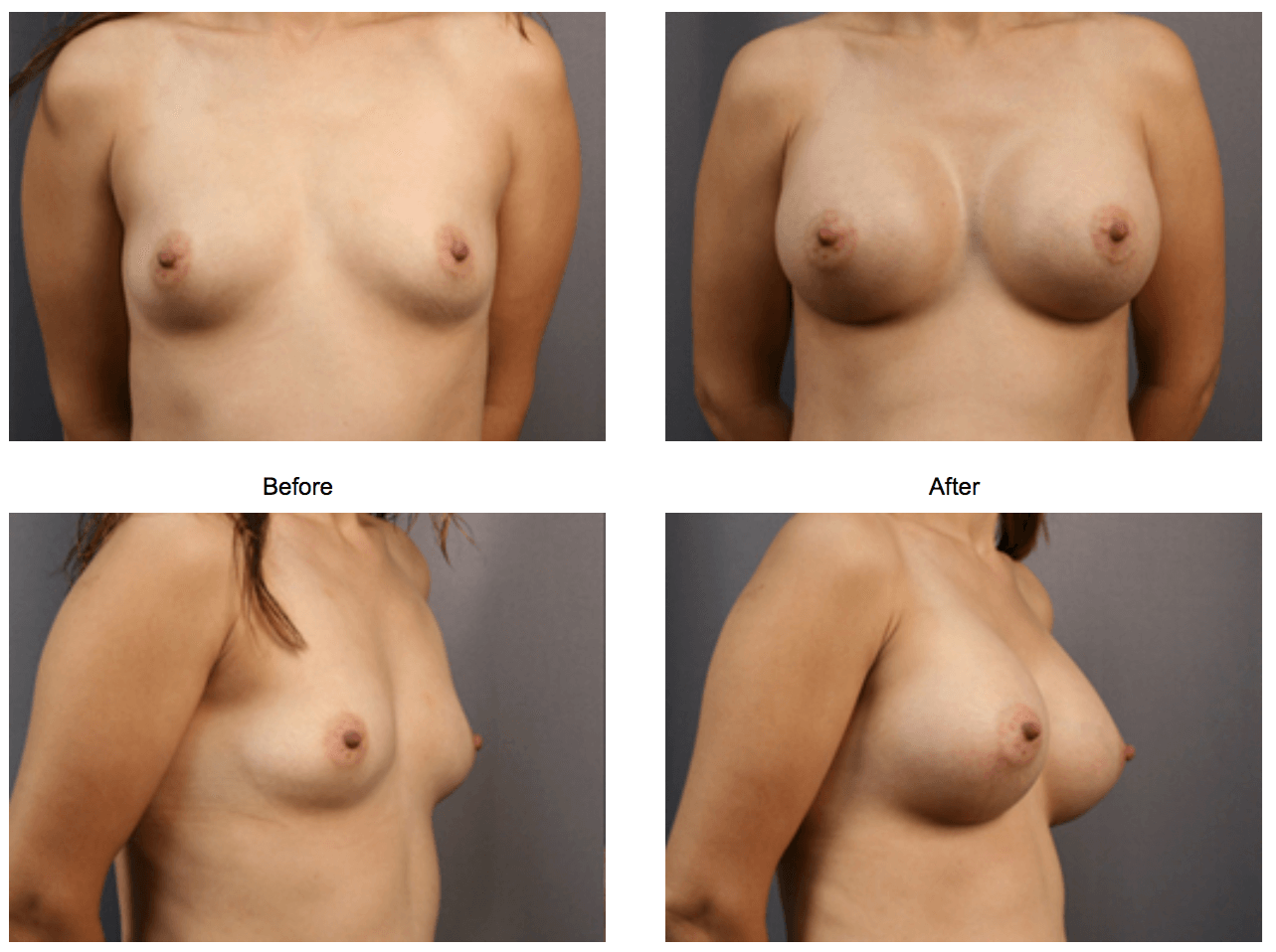 Breast Enlargement - Front After 1 month