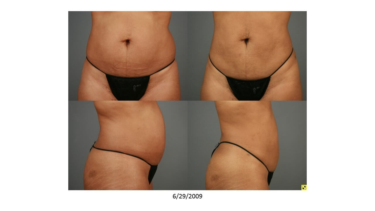 Liposuction - Side View Before