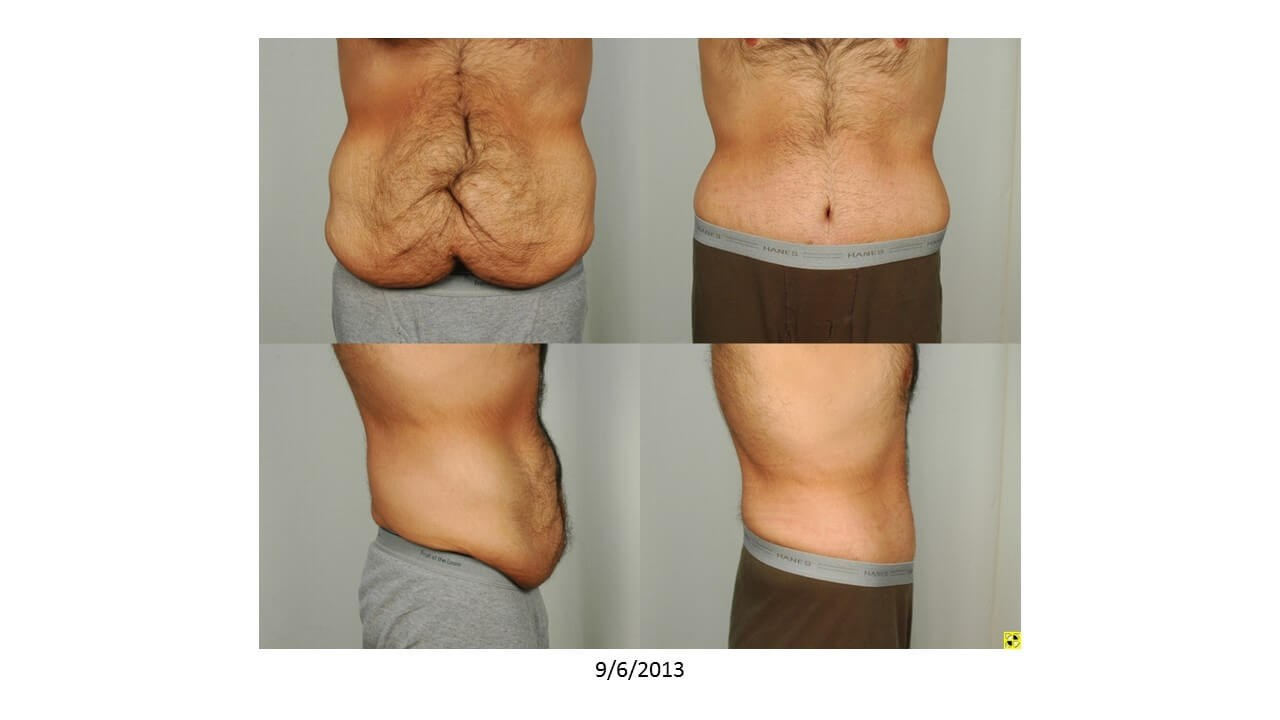 Post Weight Loss Surgery Houston