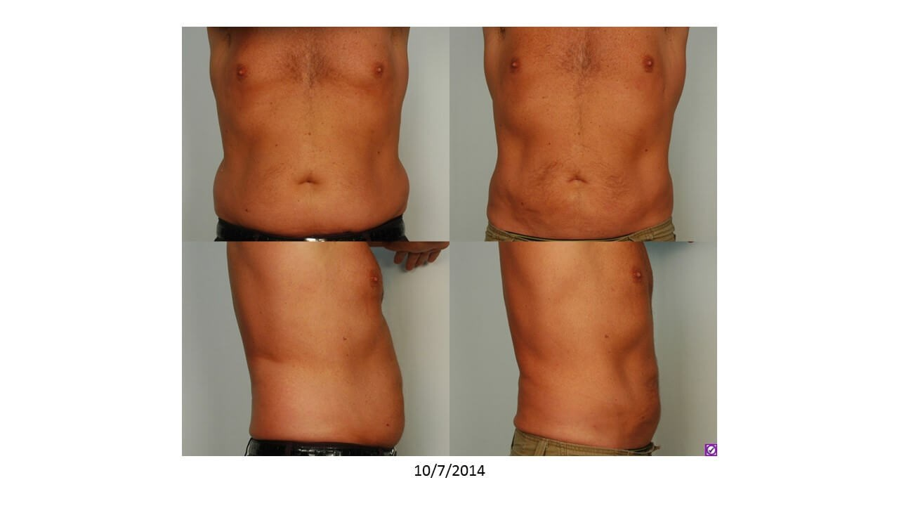 Male Liposuction After