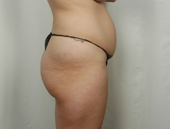 Tummy Tuck & Liposcution Before