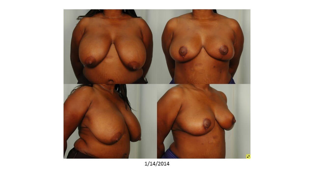 Breast Reduction - Houston Before