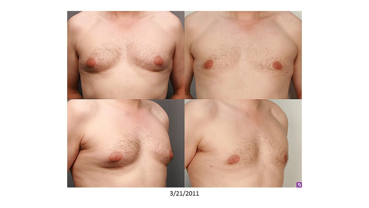 Gynecomastia - Houston After