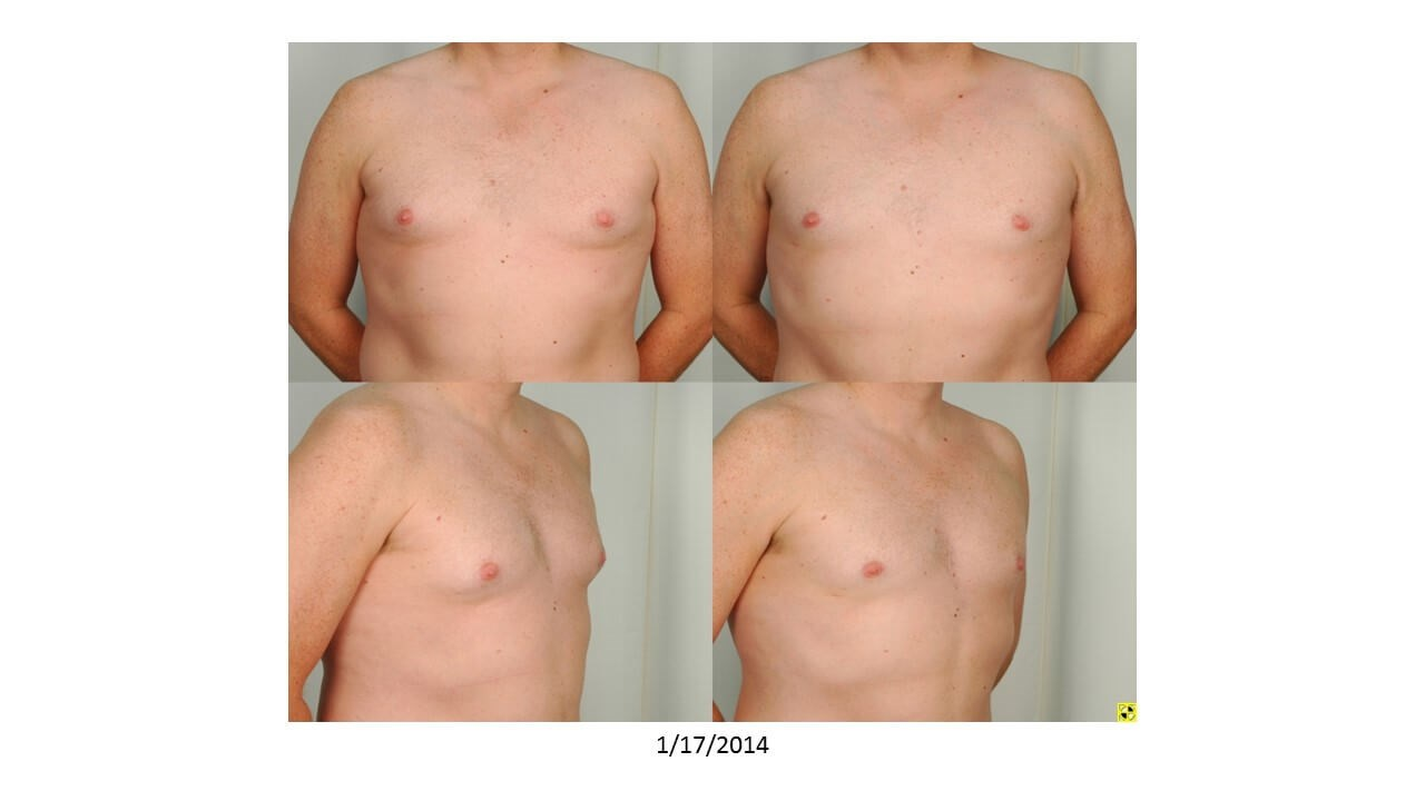 Gynecomastia - Houston Before