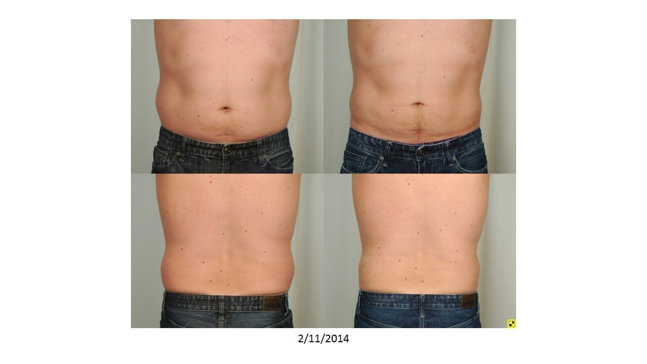 Liposuction - Houston Before