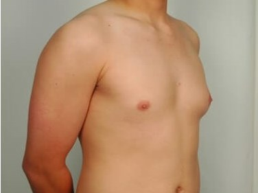 Gynecomastia - Side Before