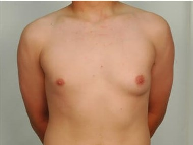 Gynecoma Before