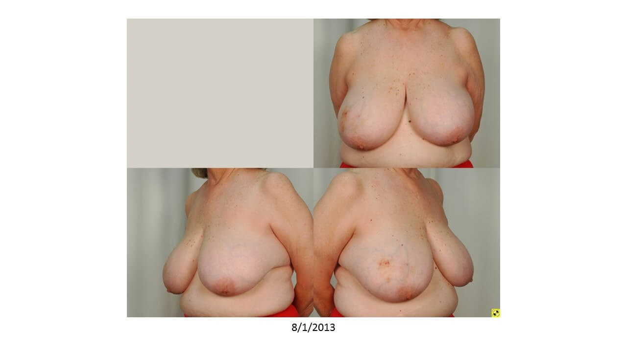 Breast Reconstruction. Before