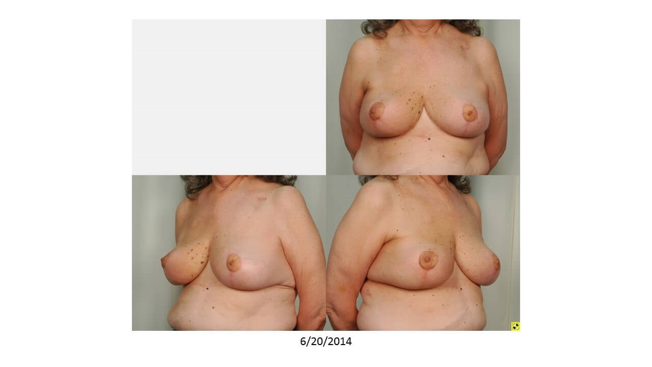 Breast Reconstruction. After