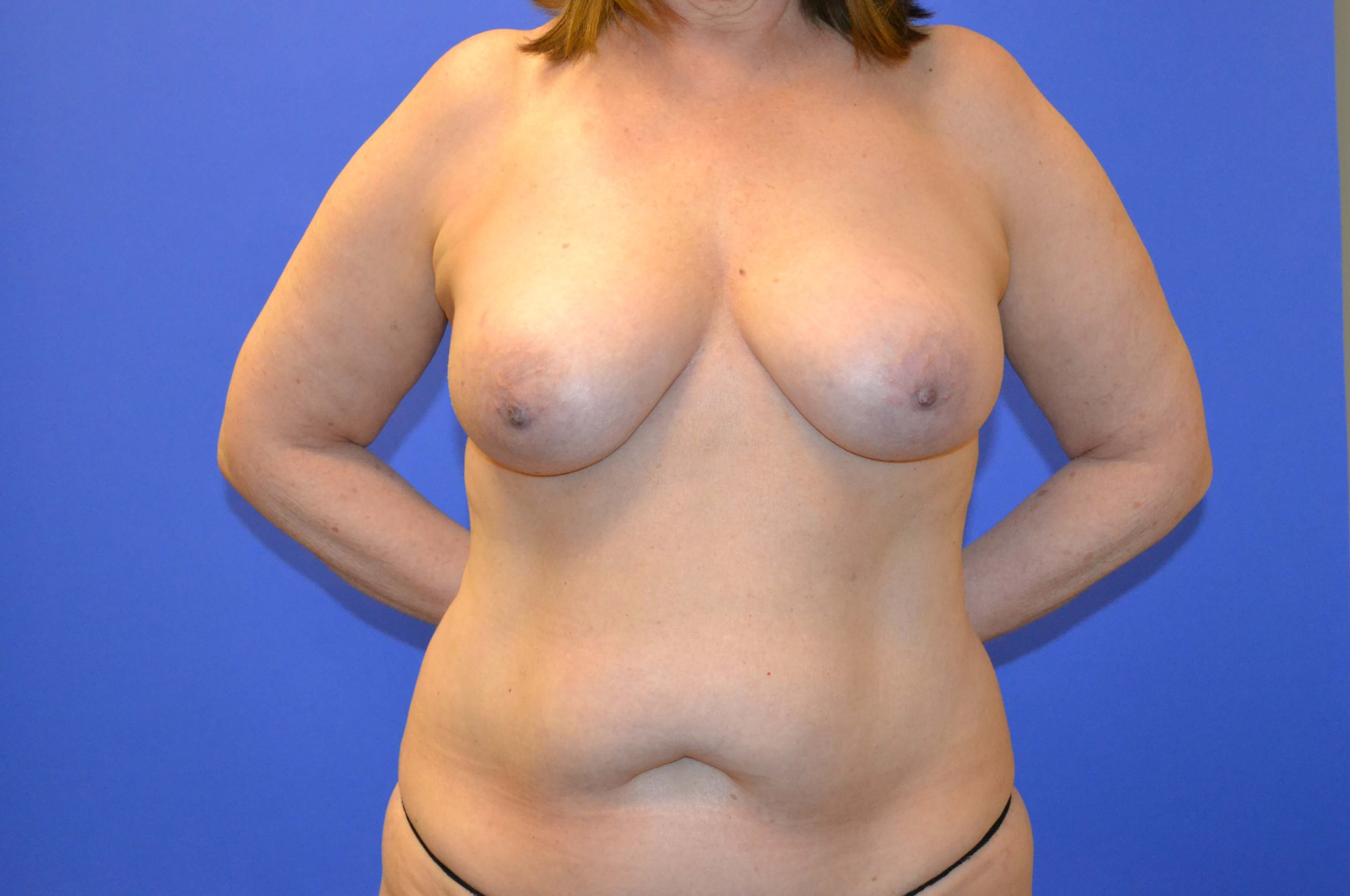 Breast Rec Before