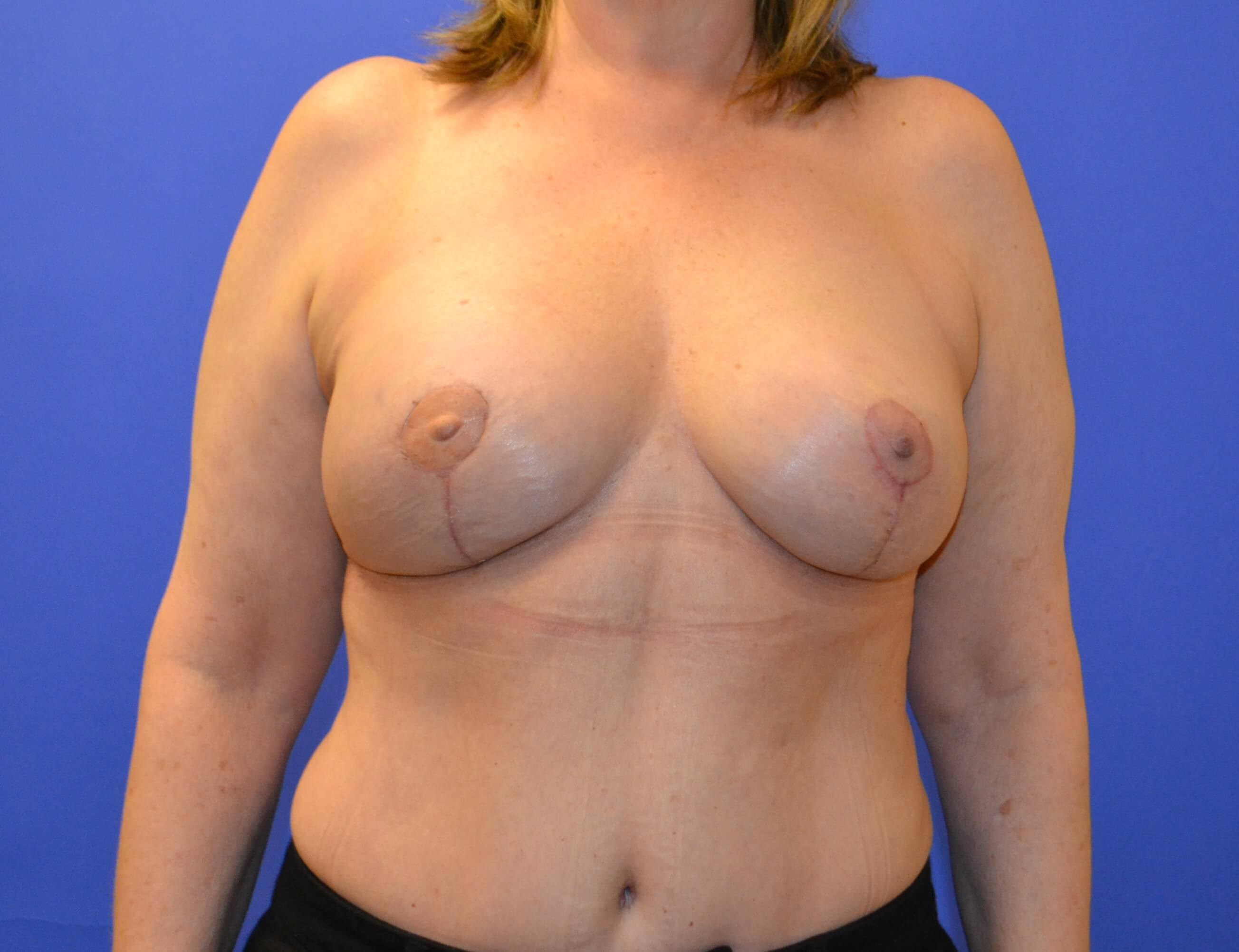 Breast Rec After