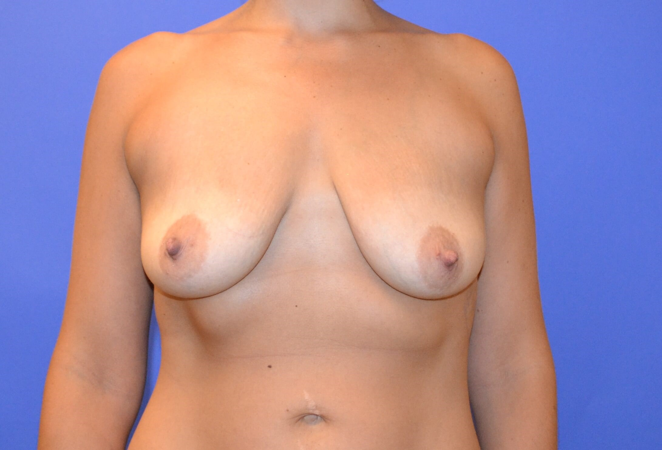 Breast Lift & Augmentation Before