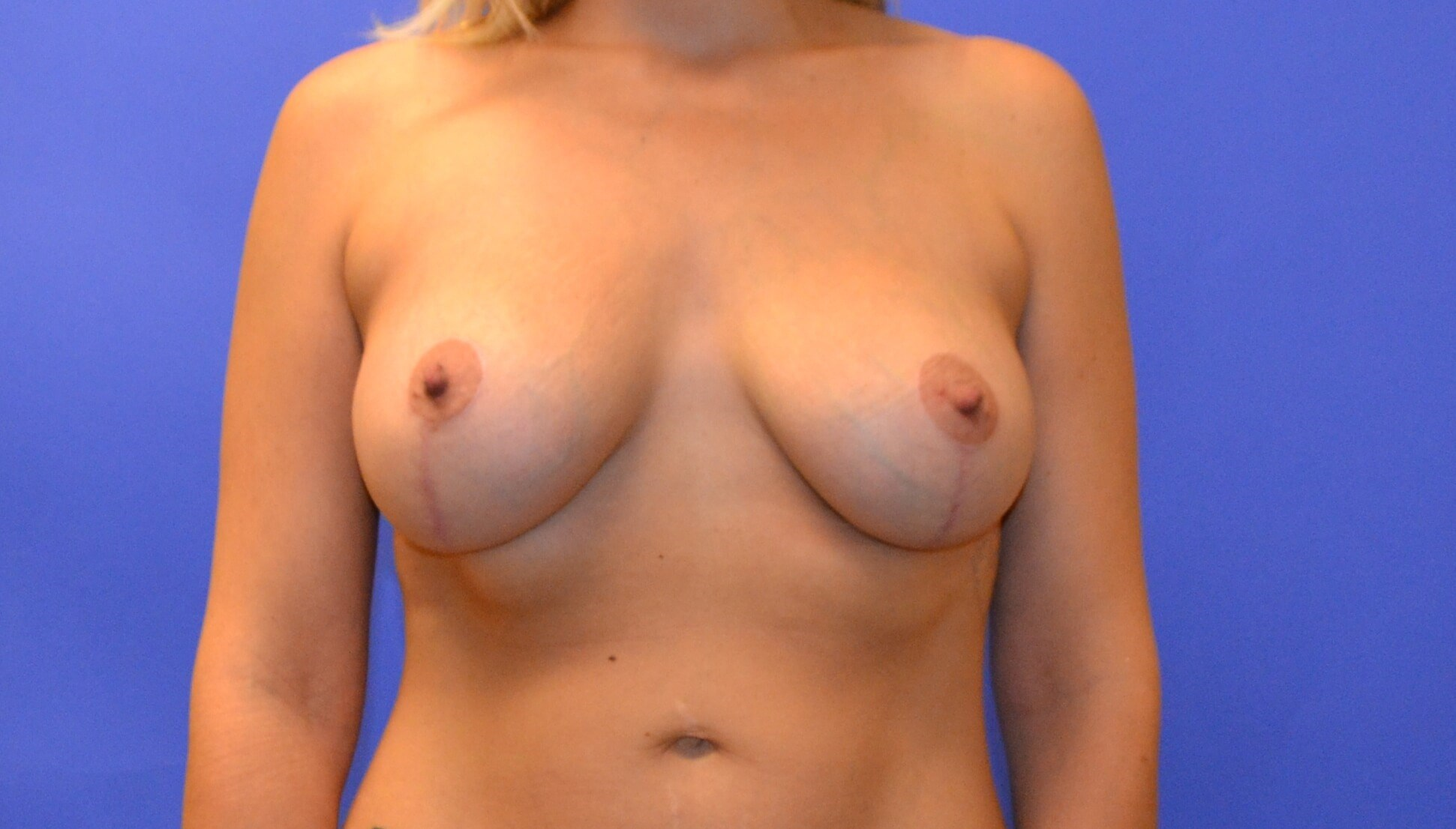 Breast Lift & Augmentation After 8 months