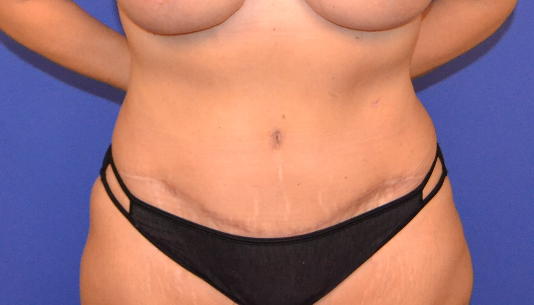 DIEP / Tummy Tuck After