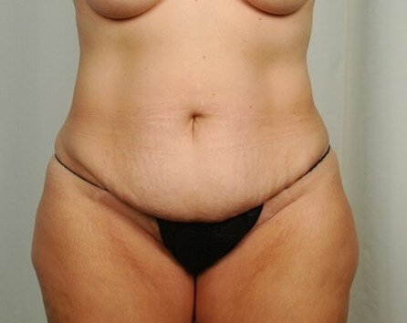 DIEP / Tummy Tuck Before