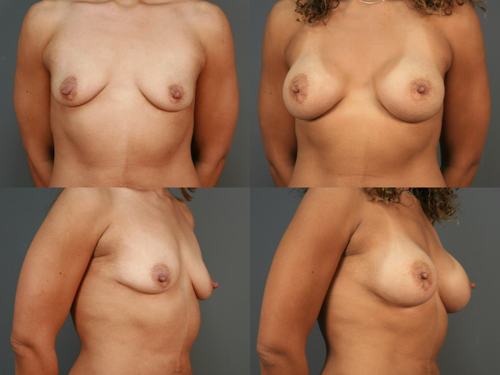 Breast Augmentation - Houston After