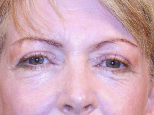 Browlift & Eyelids After