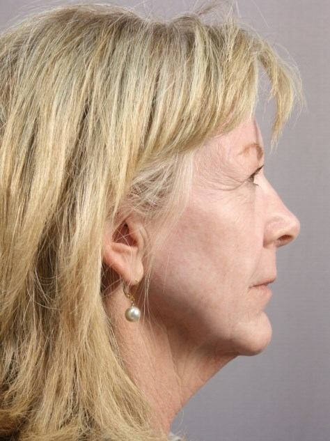 Facelift & Necklift - Houston Before