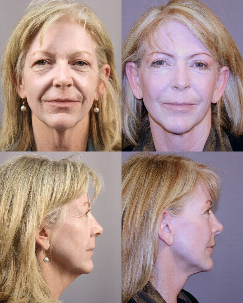Facelift & Necklift - Houston After