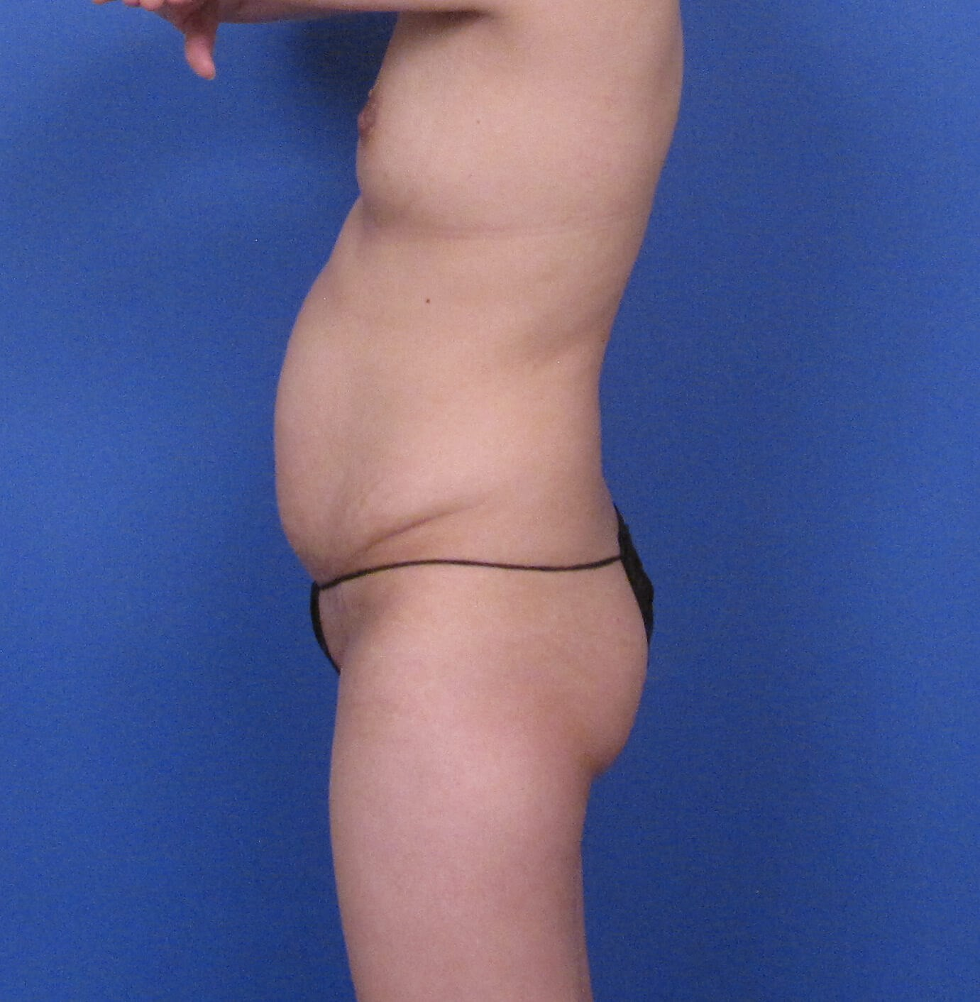 Tummy Tuck and Liposuction Before