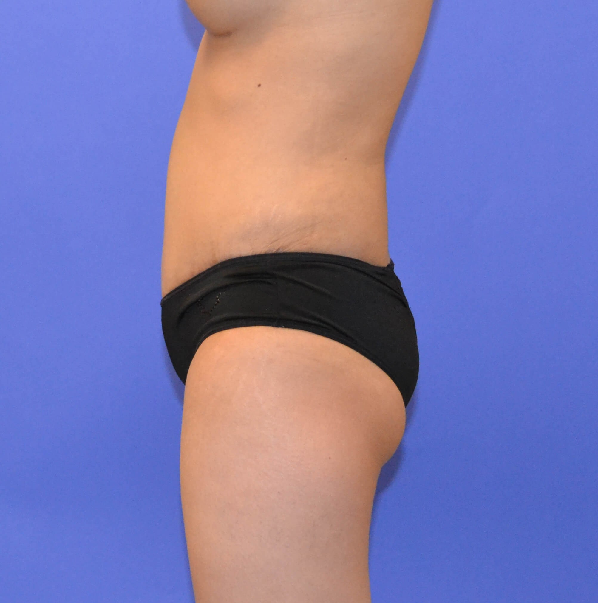 Tummy Tuck and Liposuction After