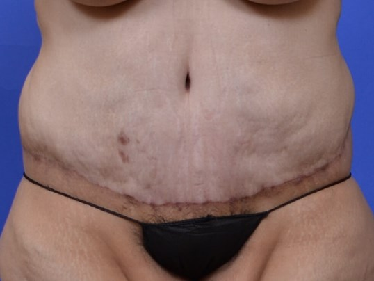 Extended Tummy Tuck After