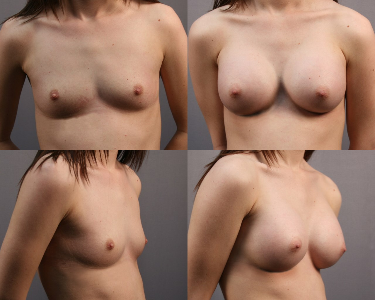 Breast Augm After