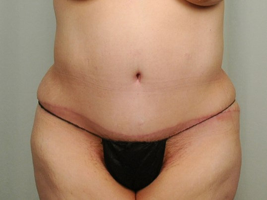 Tummy Tuck - Houston After - 3 months