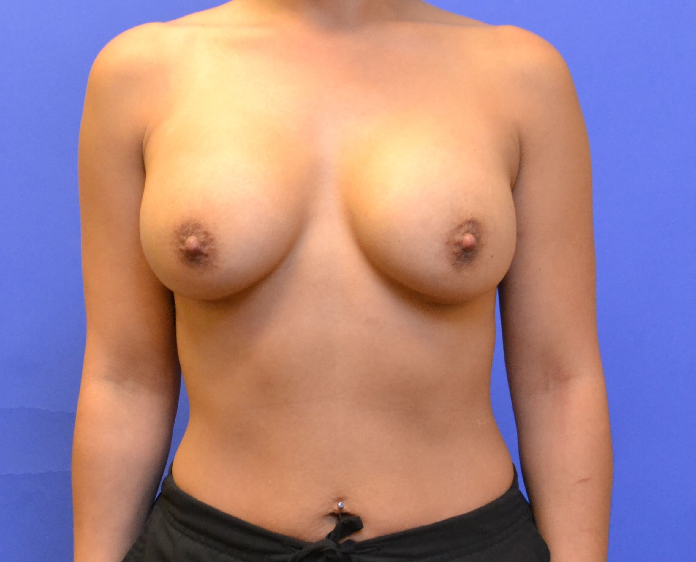 Breast Augmentation After 11 months