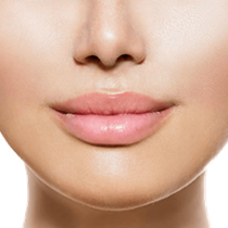 Lip Augmentation*